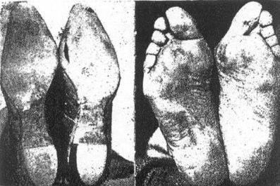 Efectos del calzado en los pies